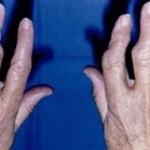 Tratamiento de la artrosis de columna