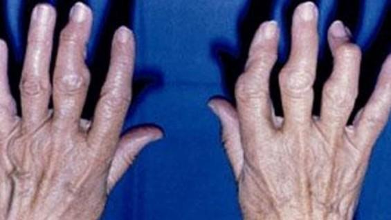 Los dolores en los riñones las articulaciones y los músculos