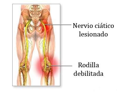 dolor-nervio-ciatico