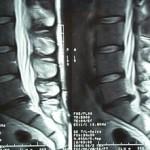 ¿Qué es la hernia discal l5 s1?