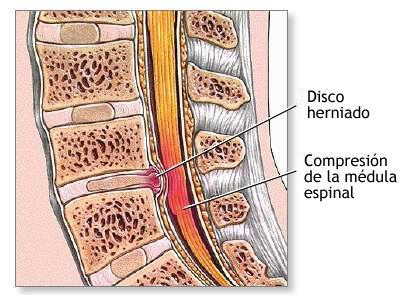 Cu les son los s ntomas de la hernia discal - Ejercicios en piscina para hernia discal l5 s1 ...