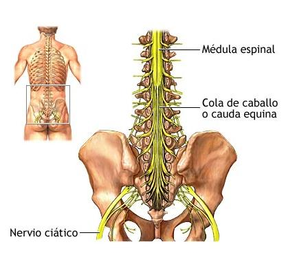 Como curar la lesión sheynogo del departamento de la columna vertebral