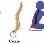 Dolor de coxis: Causas y tratamiento