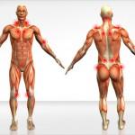 Fibromialgia, los puntos dolorosos que más afectan