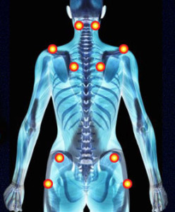 Fibromialgia los puntos dolorosos que m s afectan dolor de espalda y cuello - Colchones para dolor de espalda ...