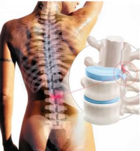 síntomas de la hernia lumbar