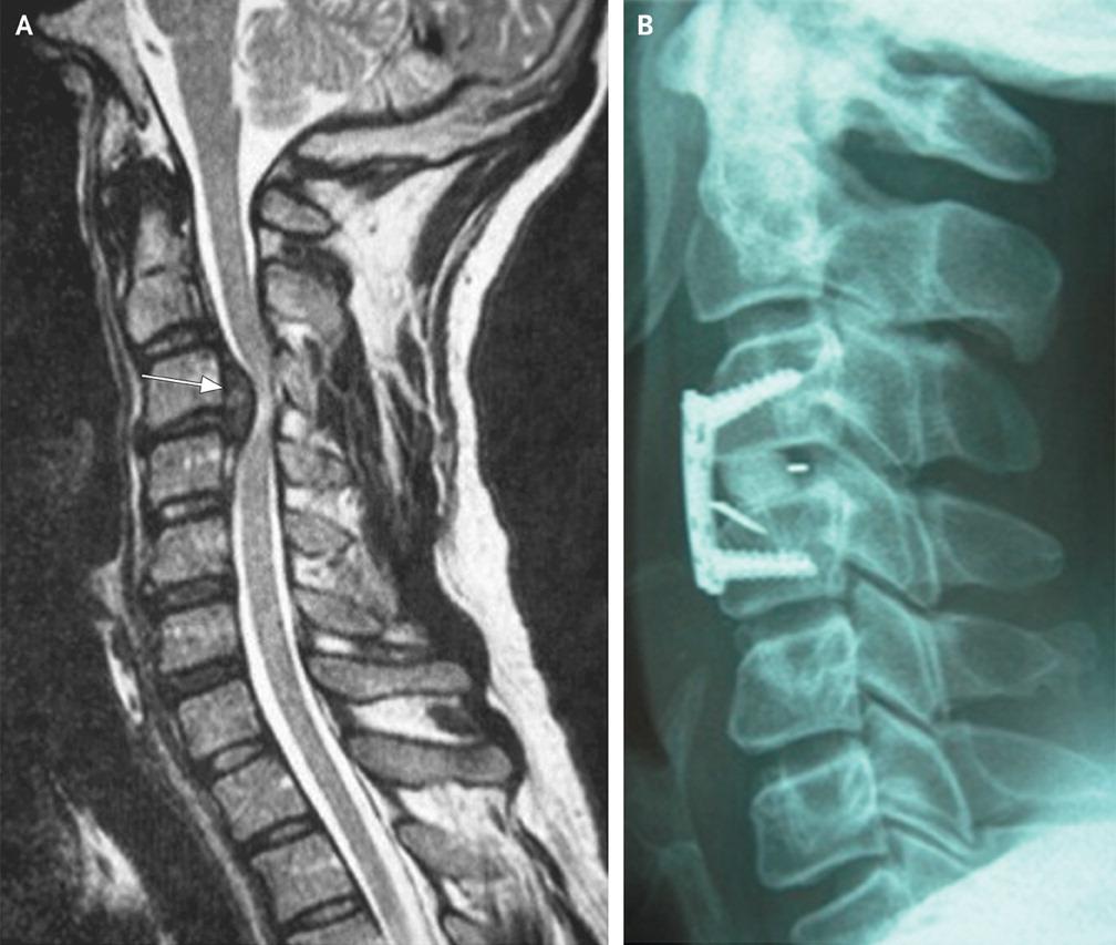 Síntomas de la hernia cervical - Dolor De Espalda y Cuello