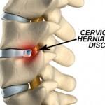 Síntomas de la hernia cervical