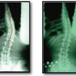 Escoliosis en adultos: Causas, síntomas y tratamiento