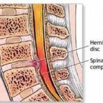 Como hacer ejercicios para la hernia discal