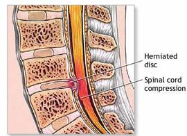 ejercicios para hernia discal