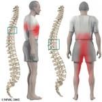 Síntomas de la hernia dorsal