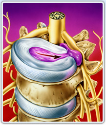operación de hernia discal