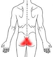 causas del dolor del coxis