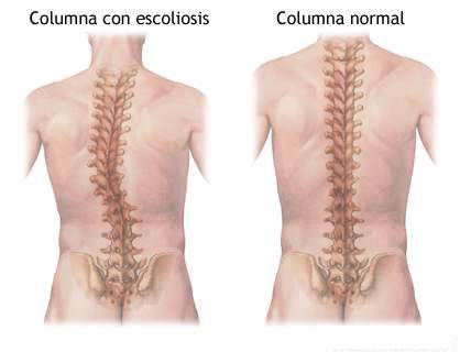 corset ortopédico para la escoliosis