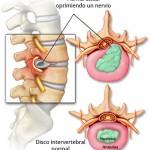 ¿Qué es la hernia discal?