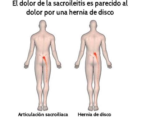 sacroileitis