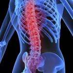 Artrosis de columna: síntomas y tratamiento
