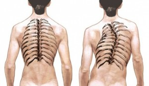 Spets.kompleks para sheynogo del departamento de la columna vertebral del doctor butrimova