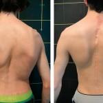 Escoliosis congénita: clasificación, causas y tratamiento