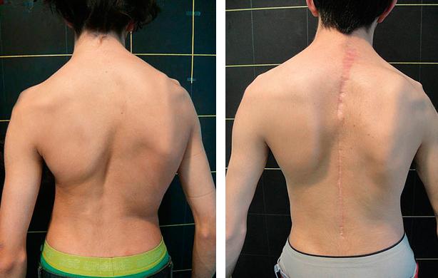 Opciones de tratamiento para la escoliosis curvatura de