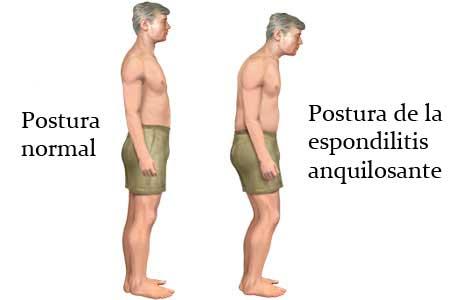 espondilitis-anquilosantes