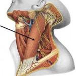 El pinchazo en la hernia de la columna vertebral sheynogo del departamento de la columna vertebral